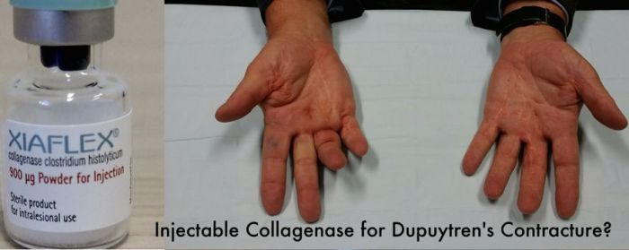 Collagenase for Dupuytren's by Dr Ian Yuen hand surgeon