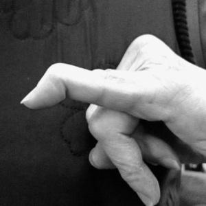 Mallet fingers by dr ian yuen sydney