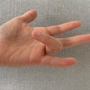 Hand surgeon dr ian yuen treating trigger finger